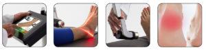 erchonia laser pain treatment